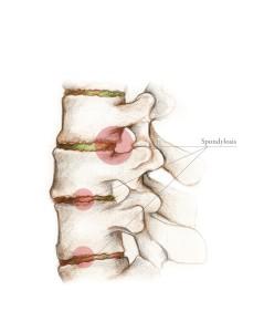 Arthritis (Spondylosis)
