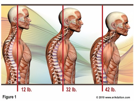 Forward Neck Posture